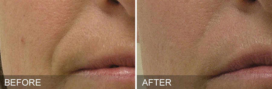 After_Before_Hydrafacial_MP_01_900