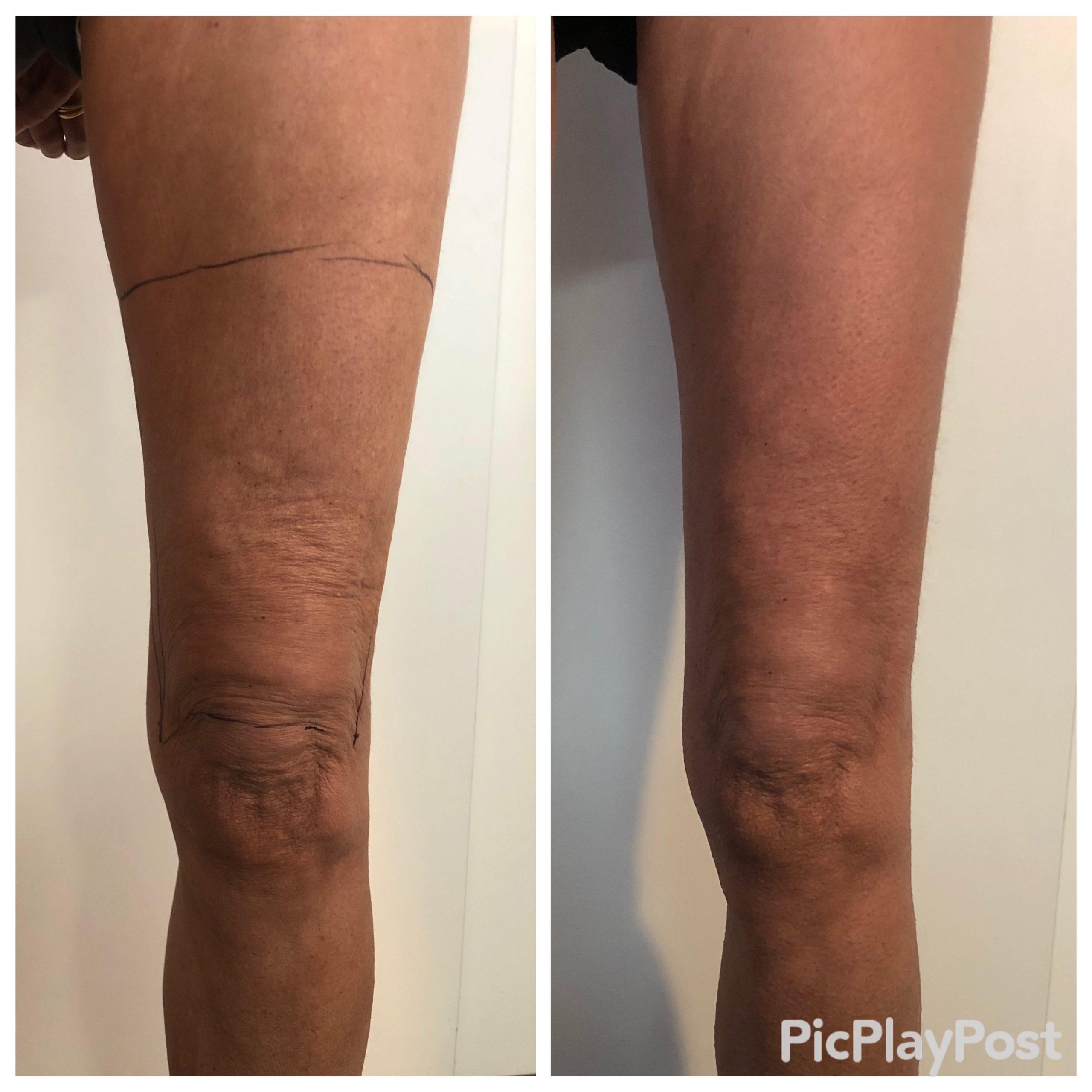 Patiente présentant une cellulite au dessus des genoux due au relâchement cutané. Traitement par radiofréquence EXILIS
